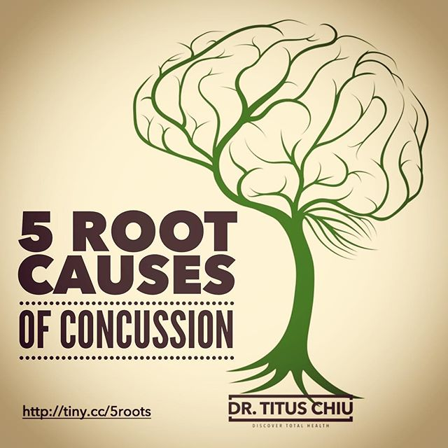 New fat brain blog post! Learn the 5 root causes of concussion. Live link in profile. Enjoy! #drtituschiu #functionalmedicine #detox #supplements #naturalmedicine #guthealth #nutrition #brainhealth #brain #neurology #neuro #functionalneurology #concussion #tbi #braindamage #rootcause #paleo #aip #naturalmedicine #holistichealth #inflammation #autoimmune #leakygut